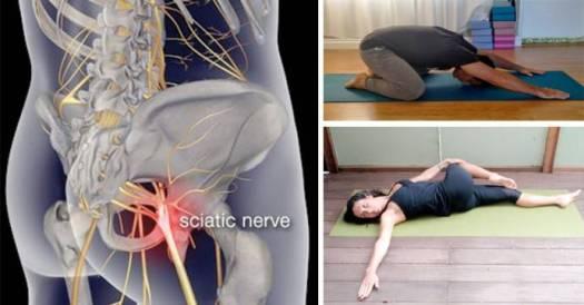 nerf-sciatic1