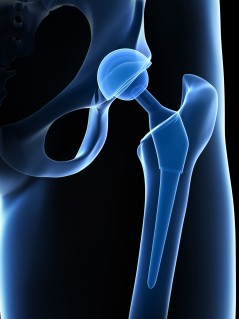 prothese-de-hanche