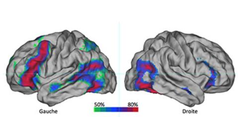 hemisphere-gauche-et-droit