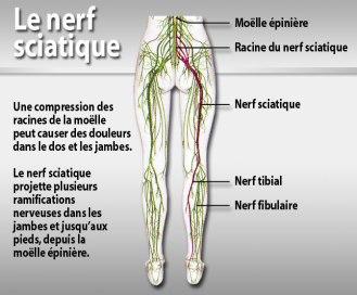 santé nerf sciatique gp14